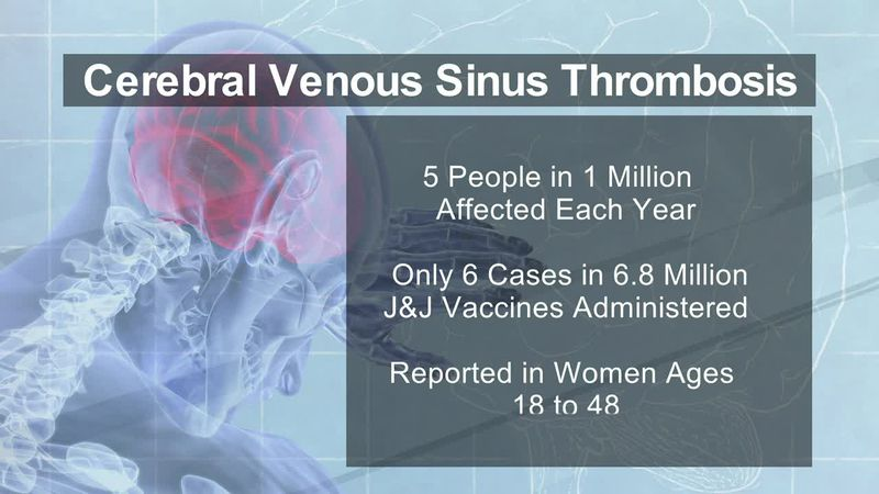 Cerebral venous sinus thrombosis
