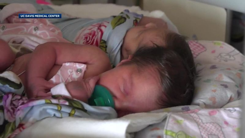 Two twin girls joined at the head were successfully separated after a lengthy surgery.